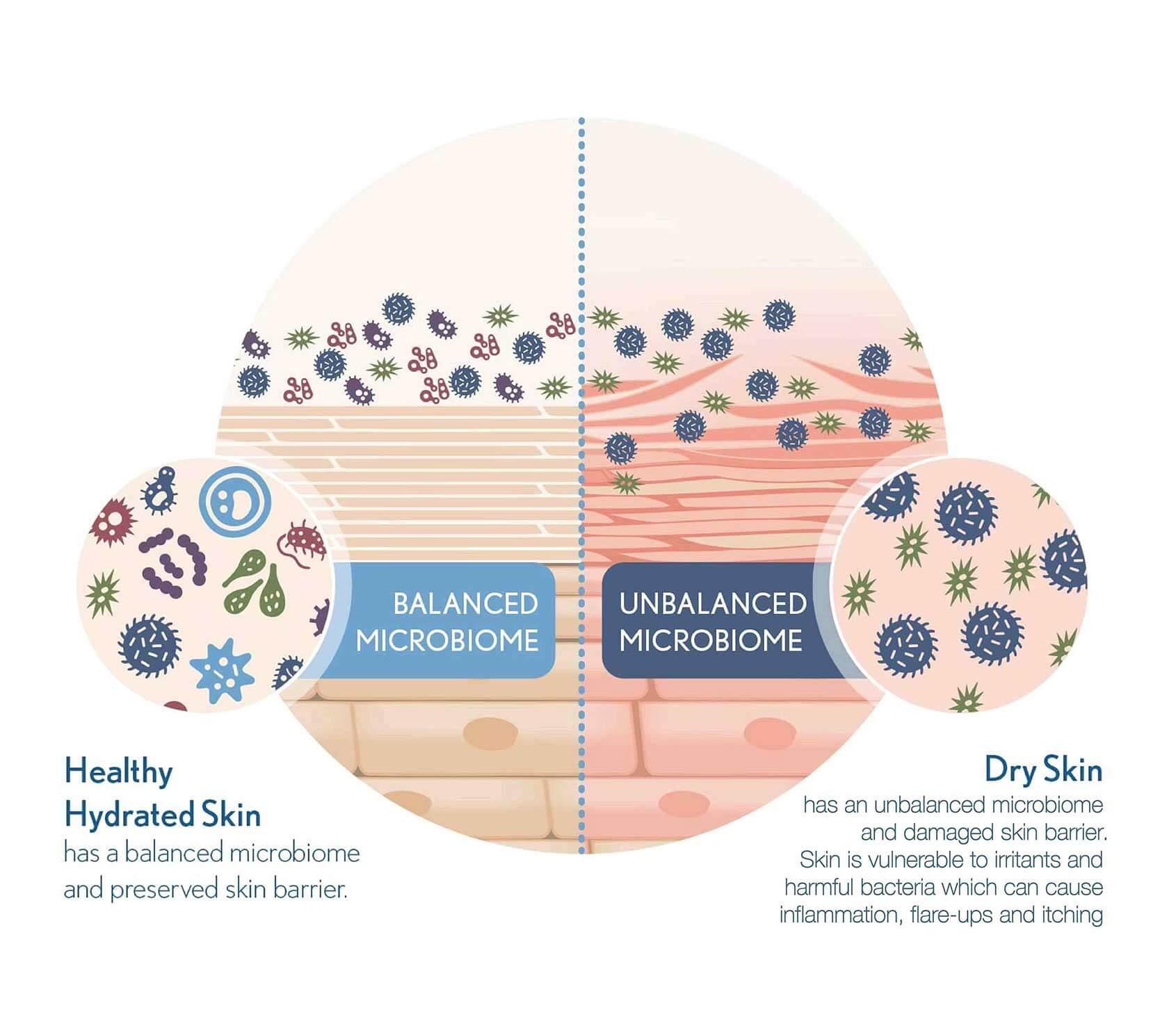 Skin Microbiome diagram