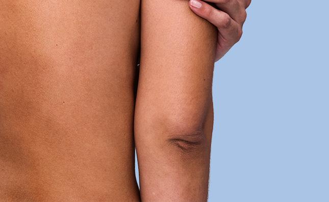 dry elbows